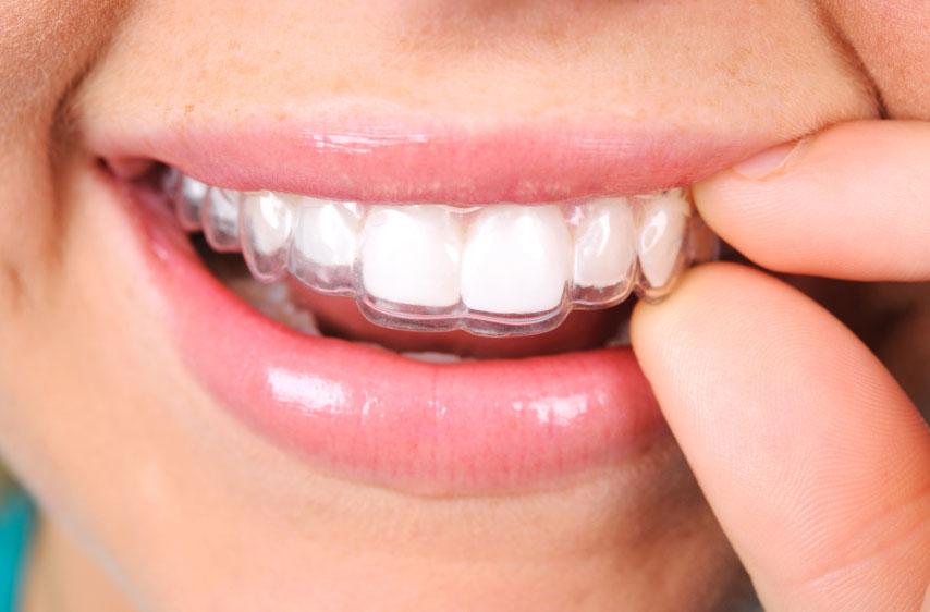 Orthodontie adulte invisalign - Cabinet d'orthodontie des drs Béatrice et Elliot YVART à Villeneuve d'Ascq