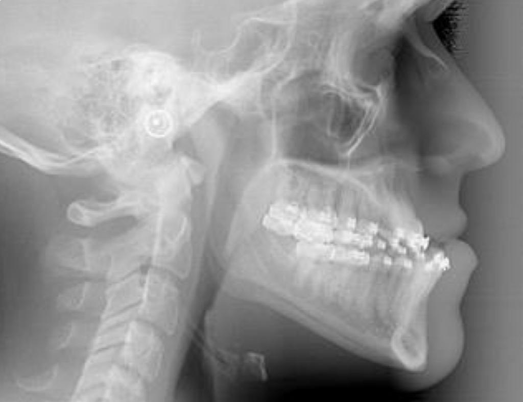 Avant chirurgie : Classe III - Cabinet d'orthodontie des drs Béatrice et Elliot YVART à Villeneuve d'Ascq