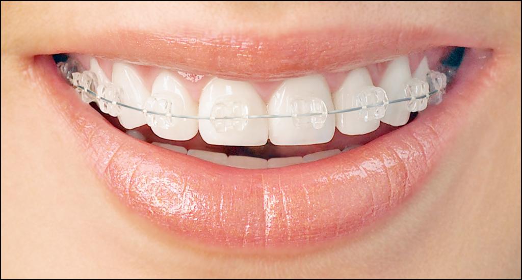 Brackets céramiques - Cabinet d'orthodontie des drs Béatrice et Elliot YVART à Villeneuve d'Ascq